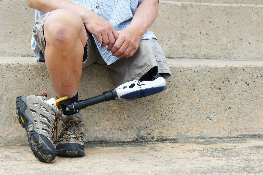 man with leg prosthetic